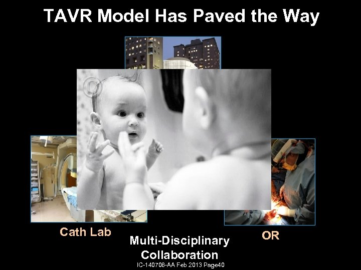 TAVR Model Has Paved the Way Cath Lab Multi-Disciplinary Collaboration IC-140706 -AA Feb 2013
