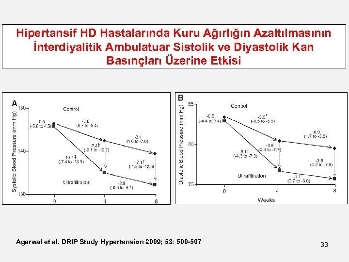 Hipertansif HD Hastalarında Kuru Ağırlığın Azaltılmasının İnterdiyalitik Ambulatuar Sistolik ve Diyastolik Kan Basınçları Üzerine