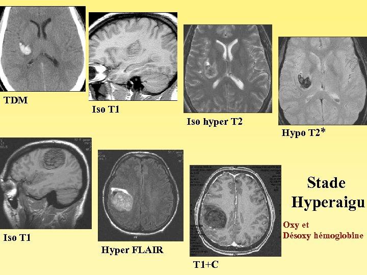 TDM Iso T 1 Iso hyper T 2 Hypo T 2* Stade Hyperaigu Oxy
