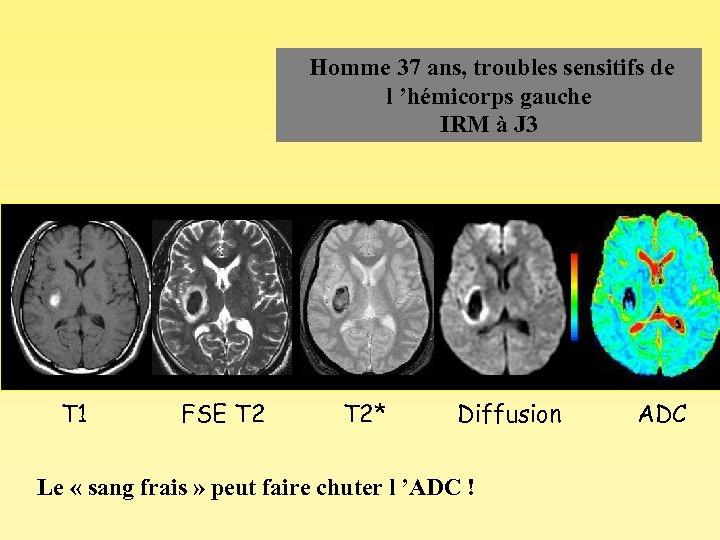 Homme 37 ans, troubles sensitifs de l 'hémicorps gauche IRM à J 3