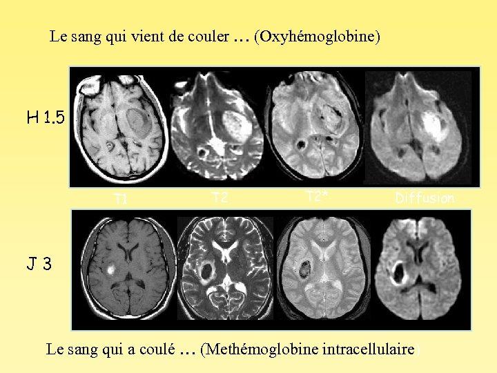 Le sang qui vient de couler … (Oxyhémoglobine) H 1. 5 T 1 T