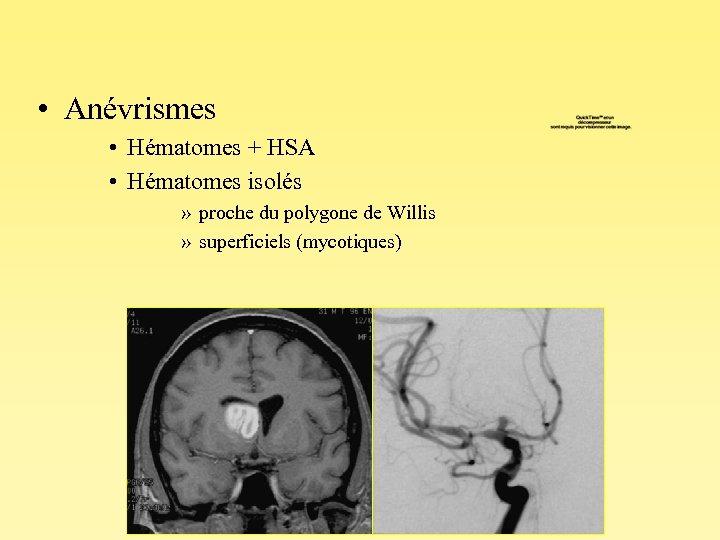 • Anévrismes • Hématomes + HSA • Hématomes isolés » proche du polygone