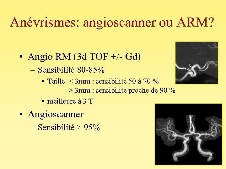 Anévrismes: angioscanner ou ARM? • Angio RM (3 d TOF +/- Gd) – Sensibilité