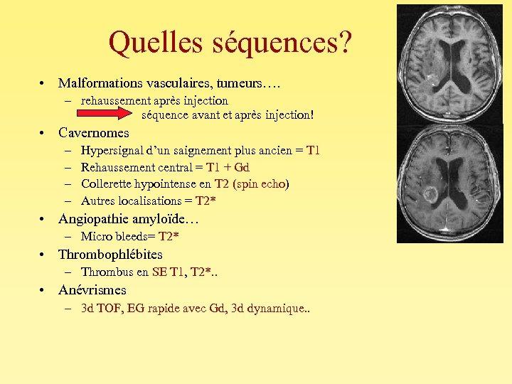 Quelles séquences? • Malformations vasculaires, tumeurs…. – rehaussement après injection séquence avant et après