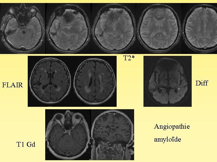 T 2* Diff FLAIR Angiopathie T 1 Gd amyloïde
