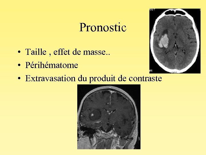 Pronostic • Taille , effet de masse. . • Périhématome • Extravasation du produit
