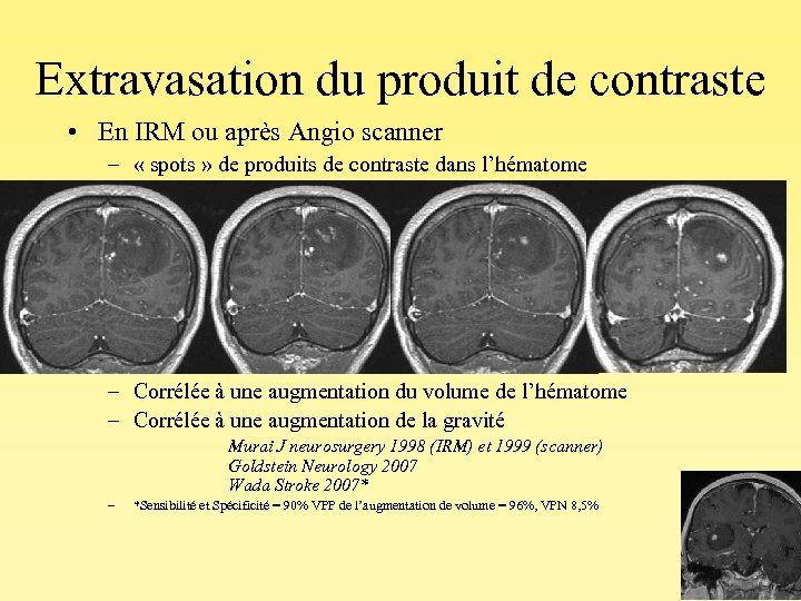 Extravasation du produit de contraste • En IRM ou après Angio scanner – «