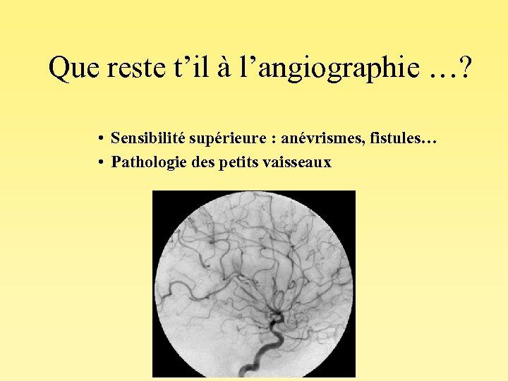 Que reste t'il à l'angiographie …? • Sensibilité supérieure : anévrismes, fistules… • Pathologie