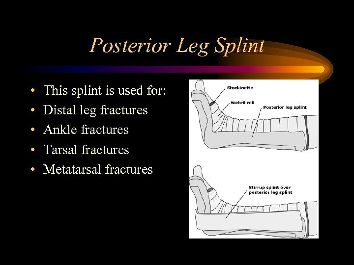 Posterior Leg Splint • • • This splint is used for: Distal leg fractures