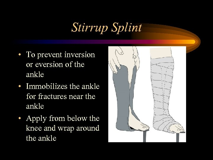 Stirrup Splint • To prevent inversion or eversion of the ankle • Immobilizes the