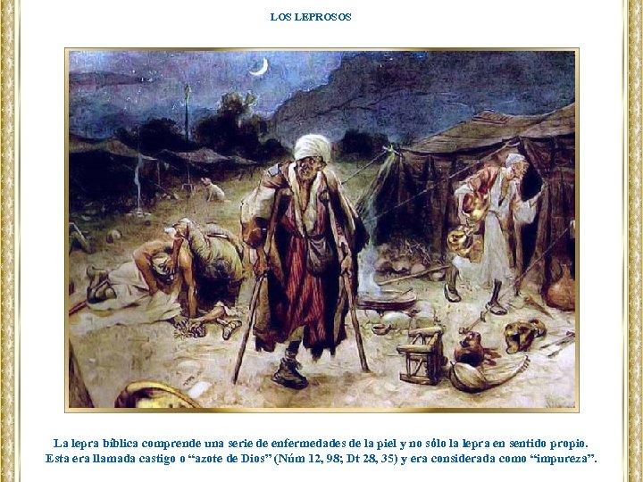 LOS LEPROSOS La lepra bíblica comprende una serie de enfermedades de la piel y