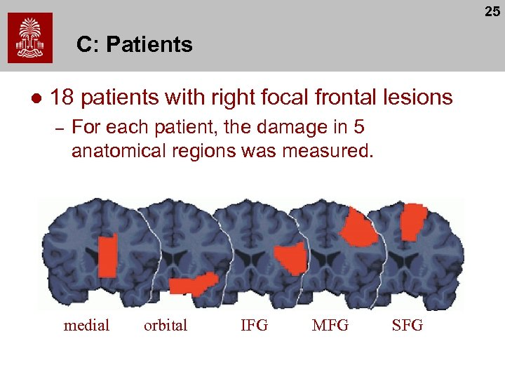 25 C: Patients l 18 patients with right focal frontal lesions – For each