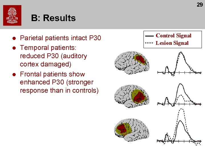 29 B: Results l l l Parietal patients intact P 30 Temporal patients: reduced