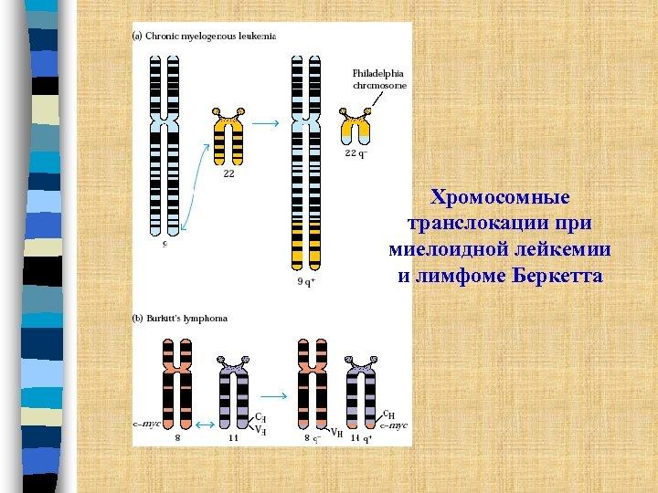 Хромосомные транслокации при миелоидной лейкемии и лимфоме Беркетта