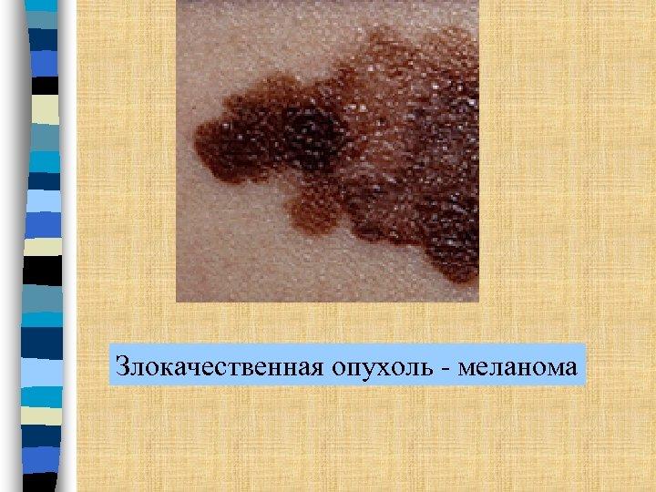 Злокачественная опухоль - меланома