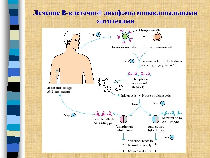 Лечение В-клеточной лимфомы моноклональными антителами