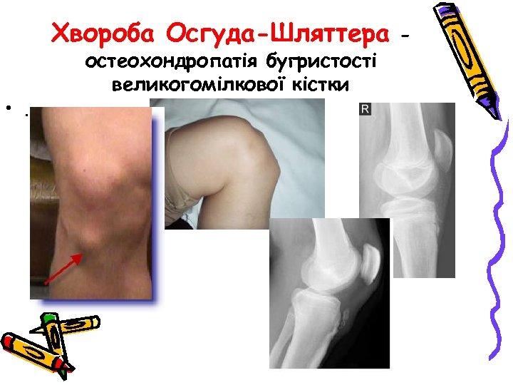 Хвороба Осгуда-Шляттера • . остеохондропатія бугристості великогомілкової кістки -