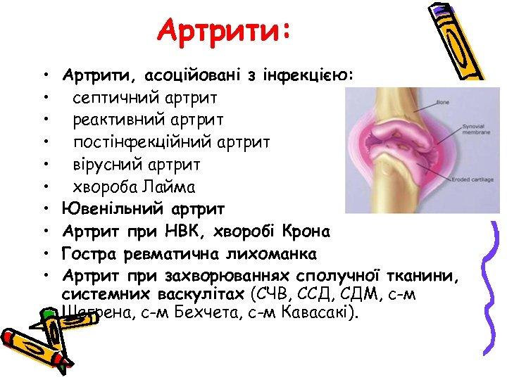 Артрити: • • • Артрити, асоційовані з інфекцією: септичний артрит реактивний артрит постінфекційний артрит