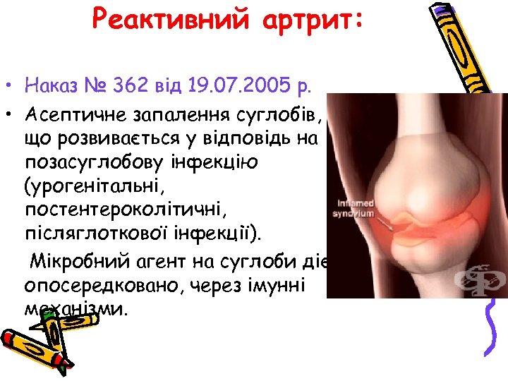 Реактивний артрит: • Наказ № 362 від 19. 07. 2005 р. • Асептичне запалення