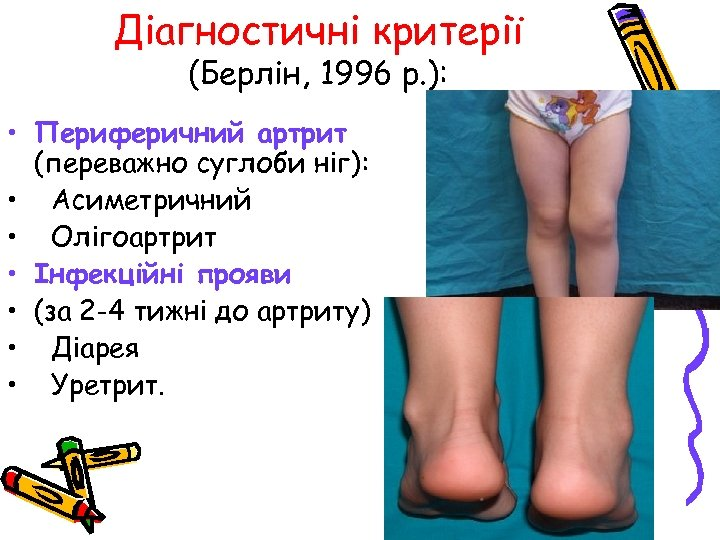 Діагностичні критерії (Берлін, 1996 р. ): • Периферичний артрит (переважно суглоби ніг): • Асиметричний