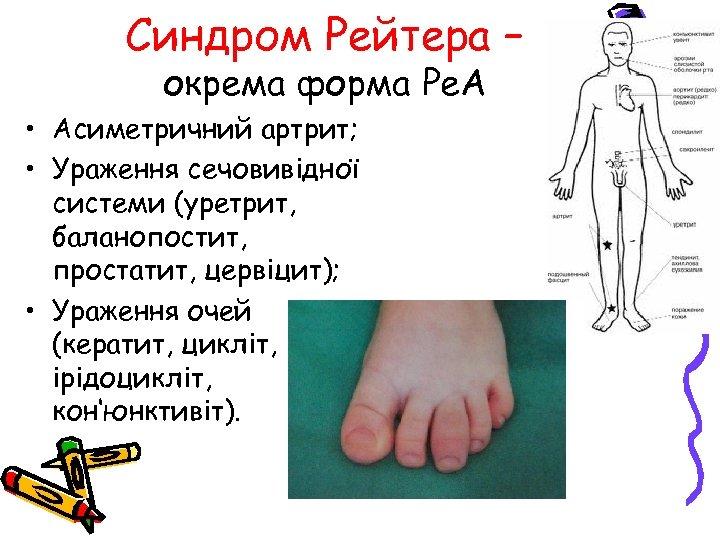 Синдром Рейтера – окрема форма Ре. А • Асиметричний артрит; • Ураження сечовивідної системи