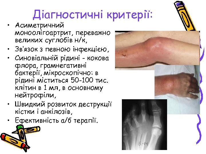 Діагностичні критерії: • Асиметричний моноолігоартрит, переважно великих суглобів н/к, • Зв'язок з певною інфекцією,