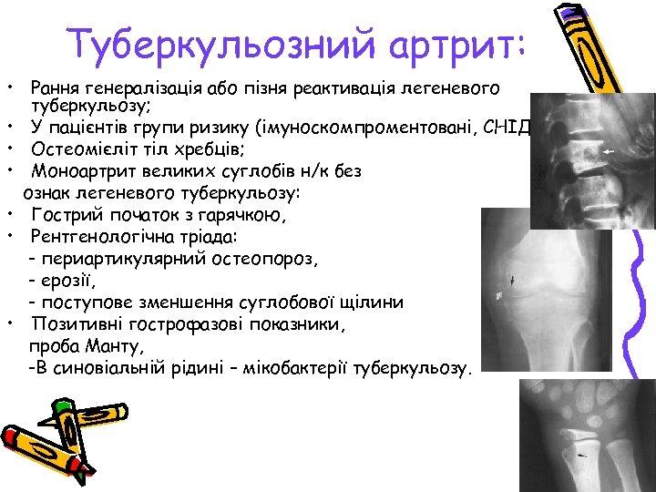 Туберкульозний артрит: • Рання генералізація або пізня реактивація легеневого туберкульозу; • У пацієнтів групи