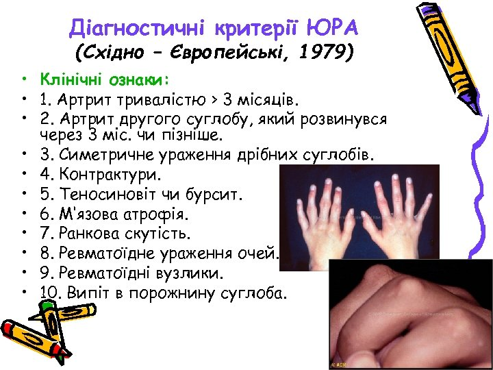 Діагностичні критерії ЮРА (Східно – Європейські, 1979) • Клінічні ознаки: • 1. Артрит тривалістю