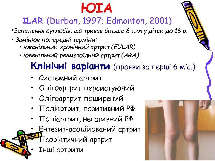 ЮІА ILAR (Durban, 1997; Edmonton, 2001) • Запалення суглобів, що триває більше 6 тиж