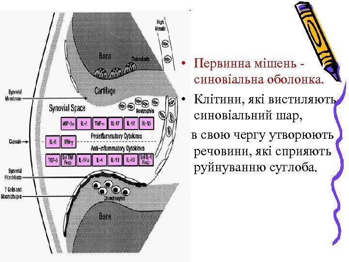 • Первинна мішень синовіальна оболонка. • Клітини, які вистиляють синовіальний шар, в свою