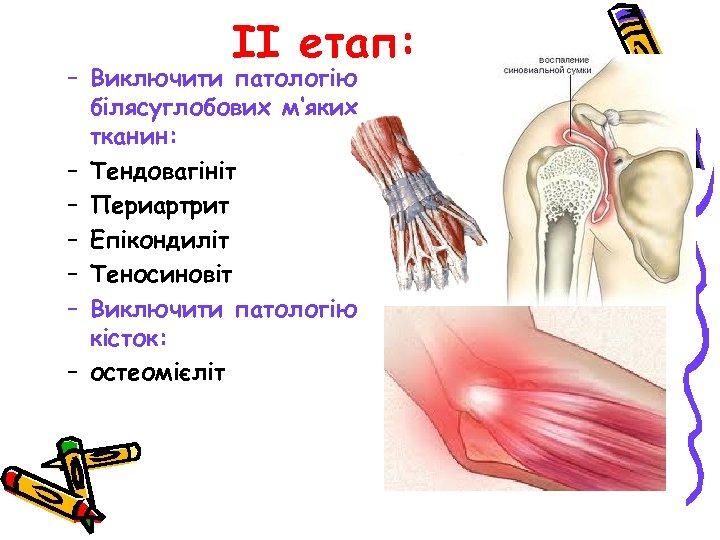 ІІ етап: – Виключити патологію білясуглобових м'яких тканин: – Тендовагініт – Периартрит – Епікондиліт