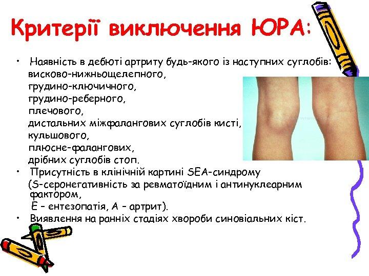 Критерії виключення ЮРА: • Наявність в дебюті артриту будь-якого із наступних суглобів: висково-нижньощелепного, грудино-ключичного,