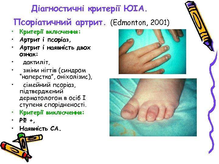 Діагностичні критерії ЮІА. Псоріатичний артрит. (Edmonton, 2001) • Критерії включення: • Артрит і псоріаз,