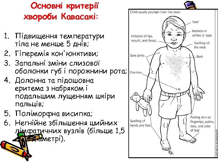 Основні критерії хвороби Кавасакі: 1. Підвищення температури тіла не менше 5 днів; 2. Гіперемія