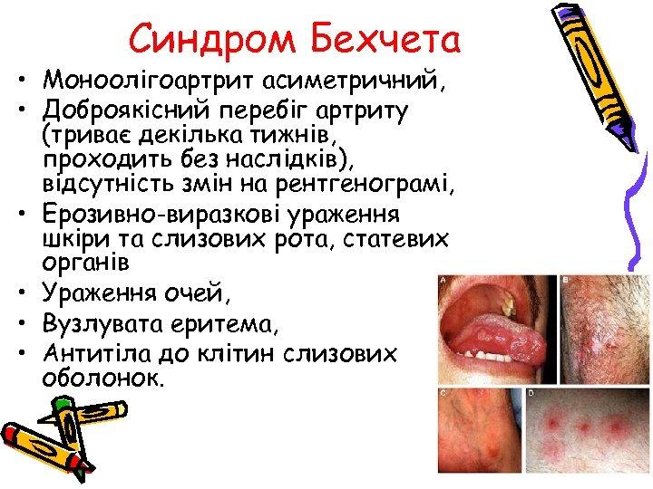Синдром Бехчета • Моноолігоартрит асиметричний, • Доброякісний перебіг артриту (триває декілька тижнів, проходить без