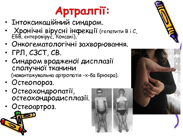 Артралгії: • Інтоксикаційний синдром. • Хронічні вірусні інфекції (гепатити В і С, ЕБВ, ентеровірус,