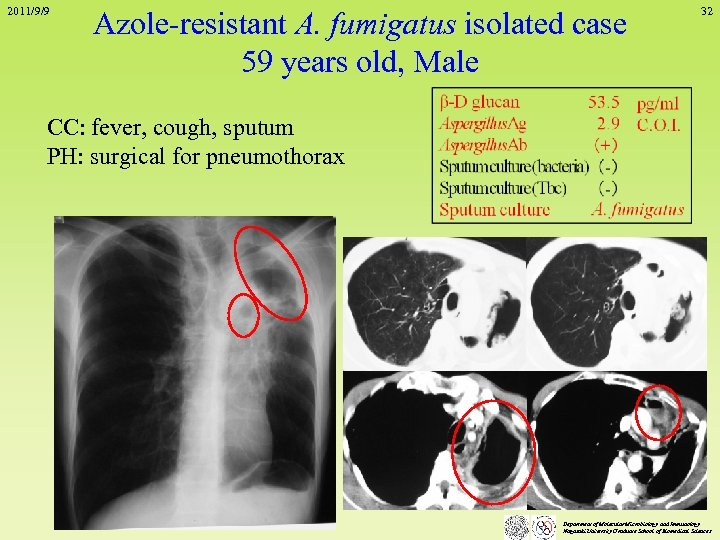2011/9/9 Azole-resistant A. fumigatus isolated case 59 years old, Male 32 CC: fever, cough,