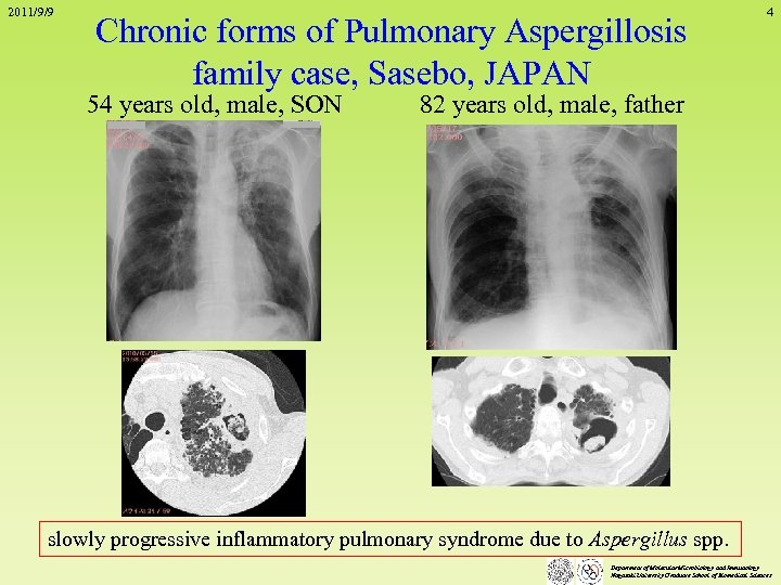 2011/9/9 Chronic forms of Pulmonary Aspergillosis family case, Sasebo, JAPAN 54 years old, male,
