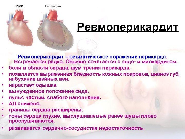 Ревмоперикардит • • • Ревмоперикардит – ревматическое поражение перикарда. Встречается редко. Обычно сочетается с