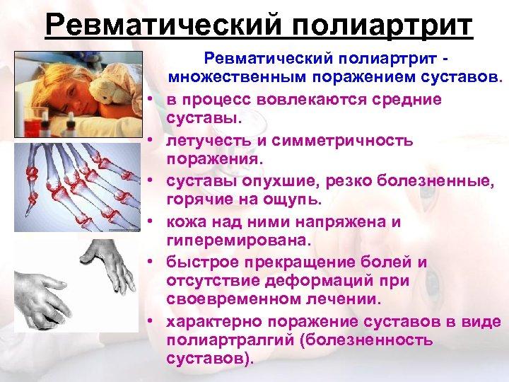 Ревматический полиартрит • • • Ревматический полиартрит множественным поражением суставов. в процесс вовлекаются средние