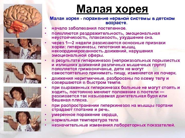 Малая хорея - поражение нервной системы в детском возрасте. • • • начало заболевания