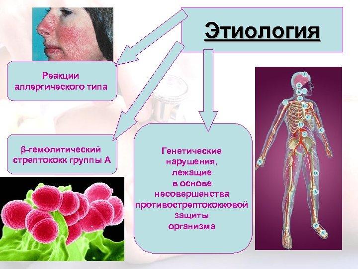 Этиология Реакции аллергического типа β-гемолитический стрептококк группы А Генетические нарушения, лежащие в основе несовершенства