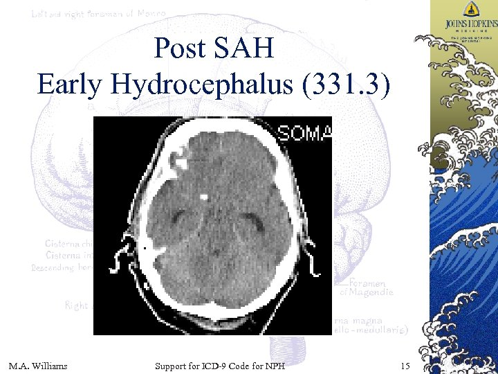 Post SAH Early Hydrocephalus (331. 3) M. A. Williams Support for ICD-9 Code for