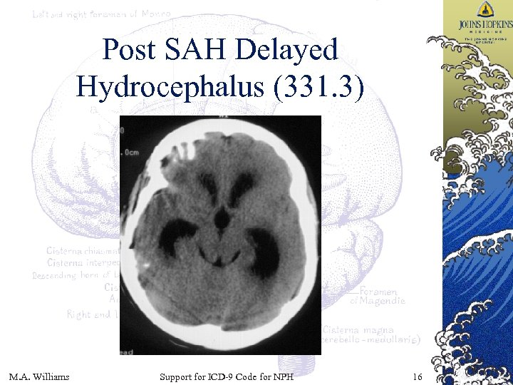 Post SAH Delayed Hydrocephalus (331. 3) M. A. Williams Support for ICD-9 Code for