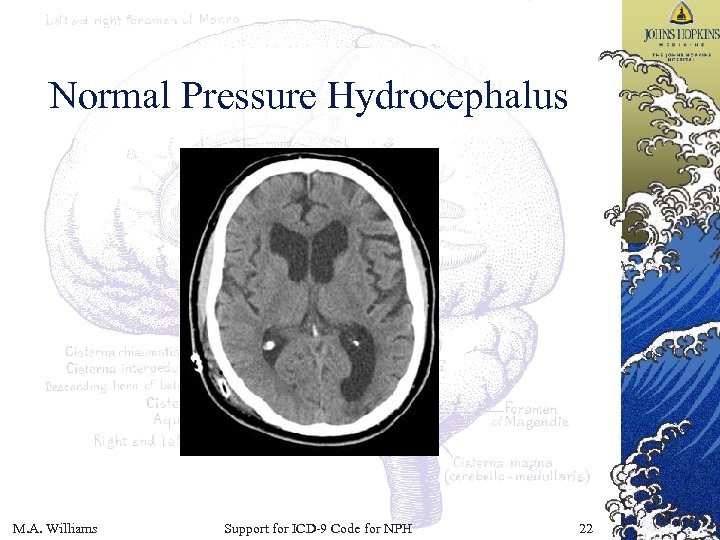 Normal Pressure Hydrocephalus M. A. Williams Support for ICD-9 Code for NPH 22