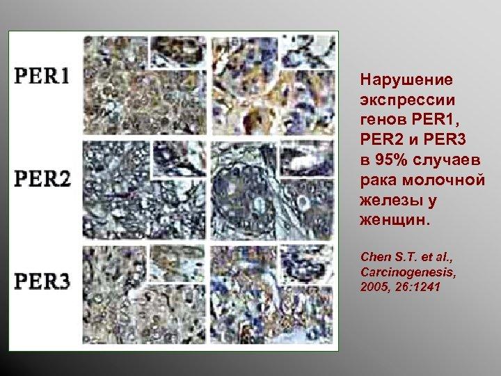 Нарушение экспрессии генов PER 1, PER 2 и PER 3 в 95% случаев рака
