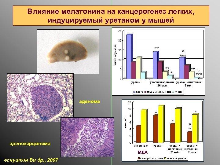 Влияние мелатонина на канцерогенез легких, индуцируемый уретаном у мышей аденома аденокарцинома МДА еснушкин Ви