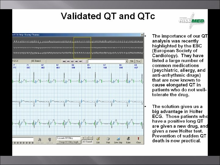 Hillmed HM-Cardio MD RESTING 12 -LEAD ECG