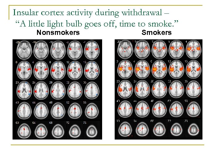 "Insular cortex activity during withdrawal – ""A little light bulb goes off, time to"