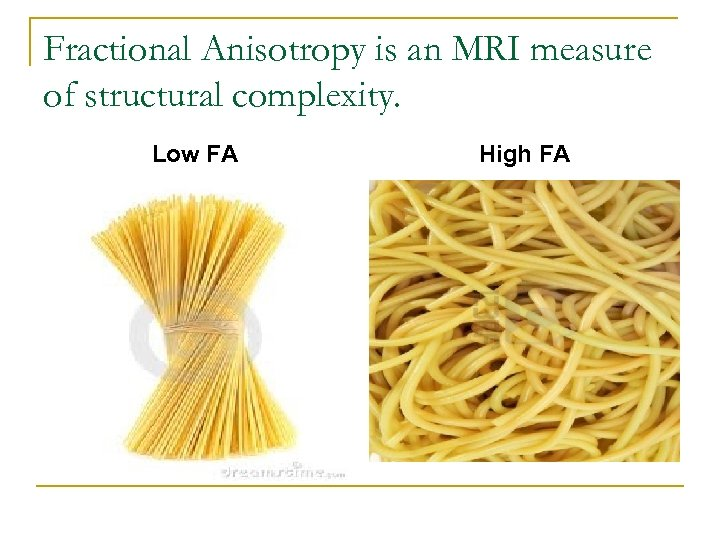 Fractional Anisotropy is an MRI measure of structural complexity. Low FA High FA